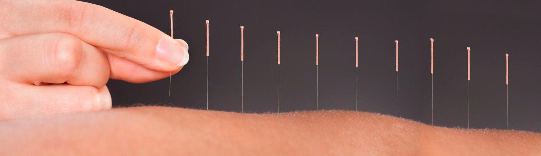 chist pe tratamentul cu laser al coloanei vertebrale
